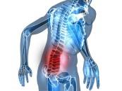 Dyskopatia kręgosłupa, a rezonans magnetyczny