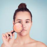 Łysienie telogenowe – najważniejsze objawy